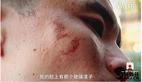 iPhone 7 esplode e gli ferisce il volto, Video